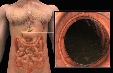Duodenal Mucosal Resurfacing May Safely Improve Glycemic