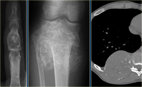 The Radiology Assistant : Bone tumor - Differential